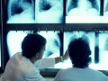 Researchers present scoring system for lung cancer screening