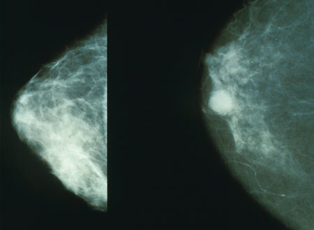 Biennial mammography optimal screening interval for average risk women