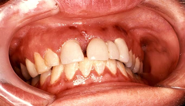 This HIV patient presented with labial and gingival Kaposi sarcoma secondary to his AIDS infection which included the maxilla.