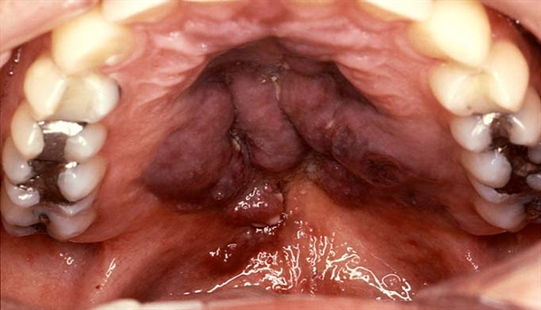 This is an advanced Kaposi sarcoma lesion of the soft palate. KS is different from most other forms of cancer in that it can develop at a number of different sites simultaneously rather than in a single site. The digestive system, which includes the oral cavity, is a usual site of development.