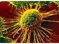 Study dispels myth that cancer biopsies cause cancer spread