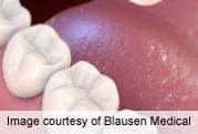 Model Accurately Predicts Risk of Oral Cancer Progression