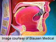 Esophageal CA Not Often Cause of Death in Barrett's Esophagus