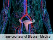 Gene Variant Linked to Uterine Fibroid Risk