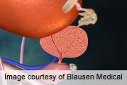 PSA Test Has Cut Metastatic Prostate Cancer at Presentation