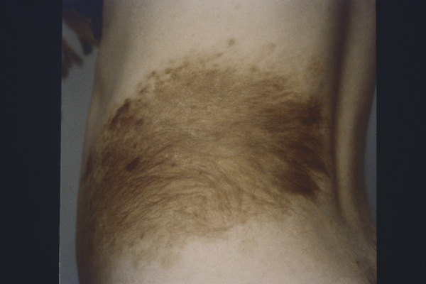 This is an image of melanoma in the loin. The loin is in close proximity to the back, and melanoma of the back is the most common form of melanoma in men.