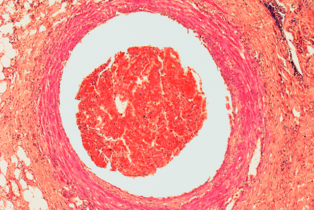 Blood clot, light micrograph