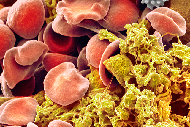 Red blood cells and platelets.