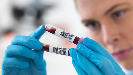 Performing a blood screening.
