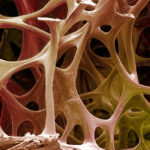Coloured scanning electron micrograph (SEM) of cancellous (spongy) bone.