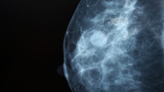 Mammography image