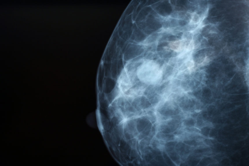Should Increased Breast Density Dictate More Breast Cancer