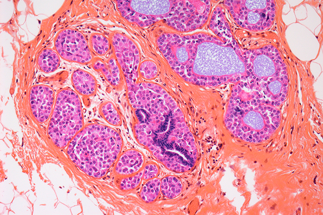 Breast cancer, light micrograph