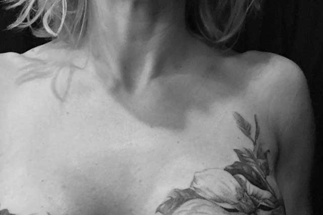 Breast tattoo covers scarring