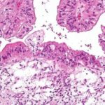 Beta-blockers may improve survival in epithelial ovarian cancer