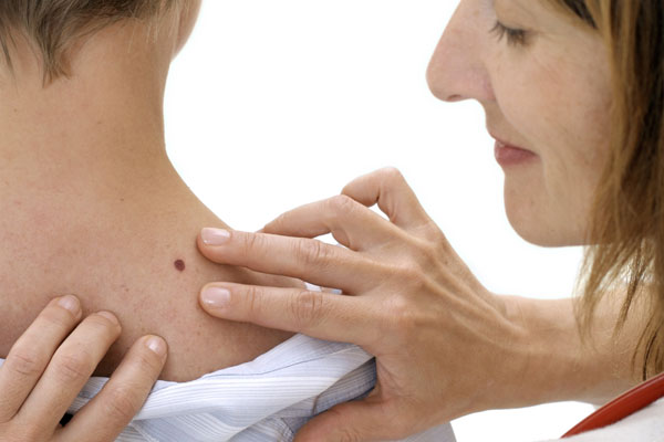 Skin cancers often vary in appearances, but several key characteristics may help in diagnosis: asymmetry, irregular border, variation in color, diameter of 5 mm or larger (about the size of pencil eraser), or a growth that bleeds or will not heal.