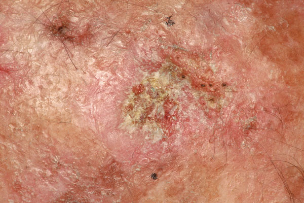 Actinic keratosis is a small, rough, raised area found on skin that has been exposed to the sun over a long period of time. It is considered a precancerous lesion and about 5% develop into squamous cell skin cancer.