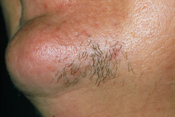 Hirsutism affects androgen-dependent areas of a woman's body and only involves terminal hair – the thick, pigmented hair found on the scalp, beard, armpit and pubic areas.