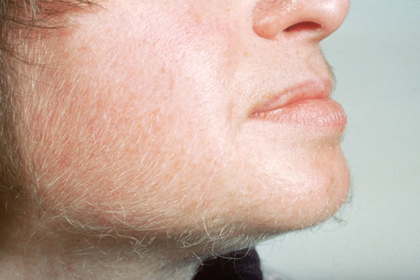 Although the terms hirsutism and hypertrichosis are often used interchangeably, hypertrichosis involves excess hair growth in areas of the body that are not androgen dependent. Notably, hypertrichosis involves excess lanugo and vellus hair, which are fine, downy and non-pigmented and resemble peach fuzz.