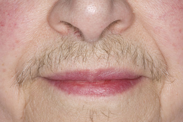 Most forms of hirsutism are idiopathic and occur in women with normal levels of male hormones who do not have menstrual abnormalities — especially after menopause and among those with dark hair. Idiopathic hirsutism is believed to be caused by hair follicles that are overly sensitive to male hormones.