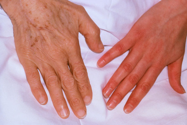 Iron deficiency is the most common cause of anemia. Many different factors can cause iron deficiency, including a lack of the nutrient in the diet, heavy menstrual periods or bleeding caused by stomach ulcers. This photo illustrates the differences between the hand of a patient with iron deficiency anemia (left) and the healthy pink skin of a normal hand (right).