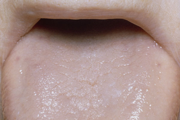 Glossitis, or inflammation of the tongue in which papillae are lost and the surface appears smooth, can be a symptom of pernicious anemia. Patients with glossitis may experience changes in the color of the tongue, soreness or tenderness and difficulty speaking or chewing.