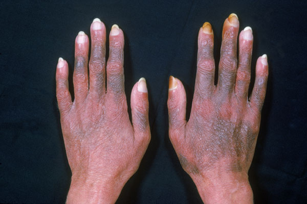 The chemotherapy drugs fluorouracil (Carac, Effudex, Fluoroplex, generics), vinorelbine (Navelbine, generics), and daunorubicin (Cerubidine, Daunoxome) cause hyperpigmentation of the skin, nails, and oral mucosa. Hyperpigmentation can follow the distribution of veins, known as serpentine supravenous hyperpigmentation, or can be patchy and macular. Topical hydroquinone can decrease melanin production and help clear hyperpigmentation. The disorder typically resolves when chemotherapy is stopped.