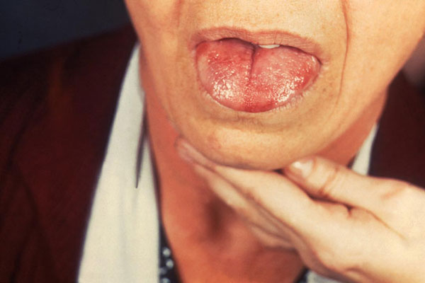 Oral hairy leukoplakia appears as white corrugated lesions on the tongue & is common among severely immunosupressed patients. Secondary infection with Epstein Barr Virus causes OHL. Lesions are usually asymptomatic but may cause altered taste or discomfort, and are sometimes confused with candidiasis. Specific treatment is generally not necessary, as lesions typically resolve with antiretroviral therapy. If the lesions are ulcerated or unusual, clinicians should biopsy to distinguish from cancer