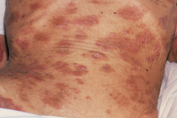 This patient has experienced weight loss due to muscle wastage associated with AIDS and has seborrheic dermatitis, marked by the darker patches on the skin. Although seborrheic dermatitis occurs throughout the general population, it may be a clinical indication that full-blown AIDS has developed in patients who are HIV seropositive.