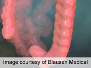 DDW: Flexible Sigmoidoscopy Tied to Lower CRC Incidence