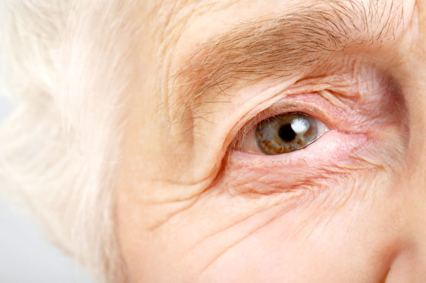Delirium may influence the effectiveness of palliative care in symptom reduction.