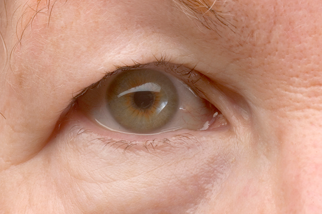 A drooping eyelid