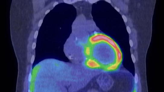 HF/CM risks in breast chemotherapy