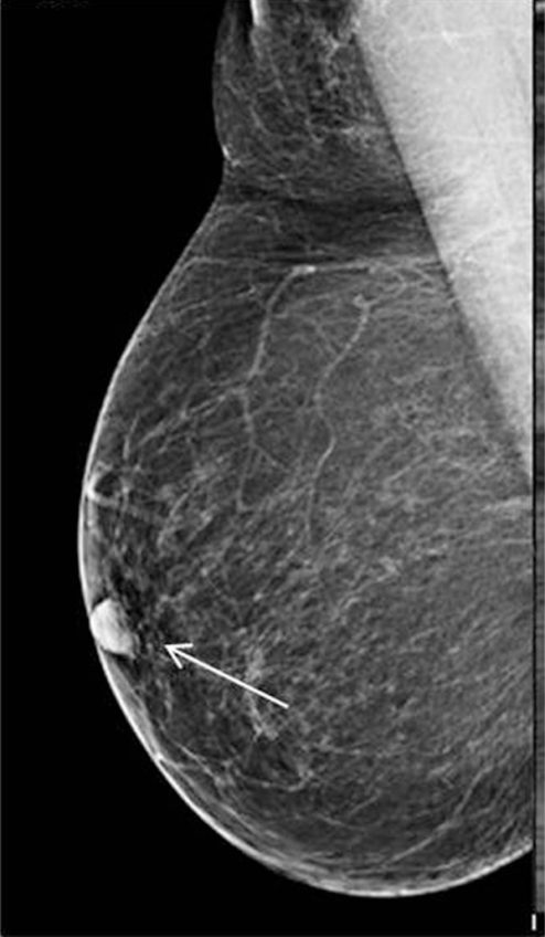 Rolled on nipple appearing as a space occupying lesion on an MLO view of the right breast. Ultrasound breast was normal.