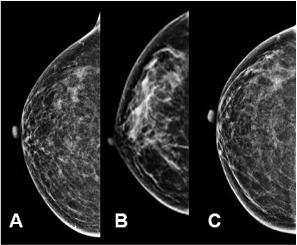 Position of the nipple (A) in profile, (B) pointing medially, and (C) pointing laterally.