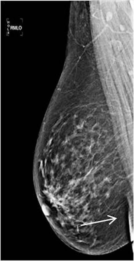 An ideal MLO view (i) nipple in profile, (ii) pectoralis muscle margin well visualized, (iii) edge of pectoralis muscle below the level of PNL, and (iv) inframammary angle (arrow).