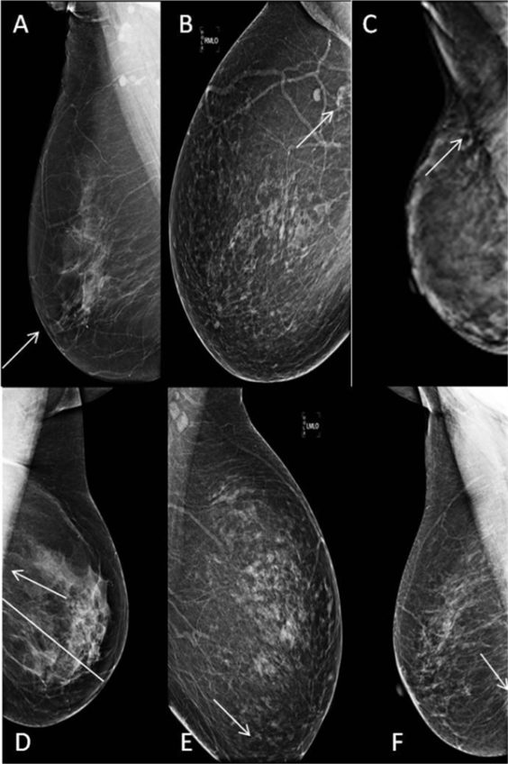 MLO mistakes: (A) nipple not in profile, (B) pectoralis muscle not seen, (C) edge of pectoralis muscle ill-defined, (D) lower edge of pectoralis above PNL line, (E) poor lower quad. coverage, and (F) inframammary fold not visualized.
