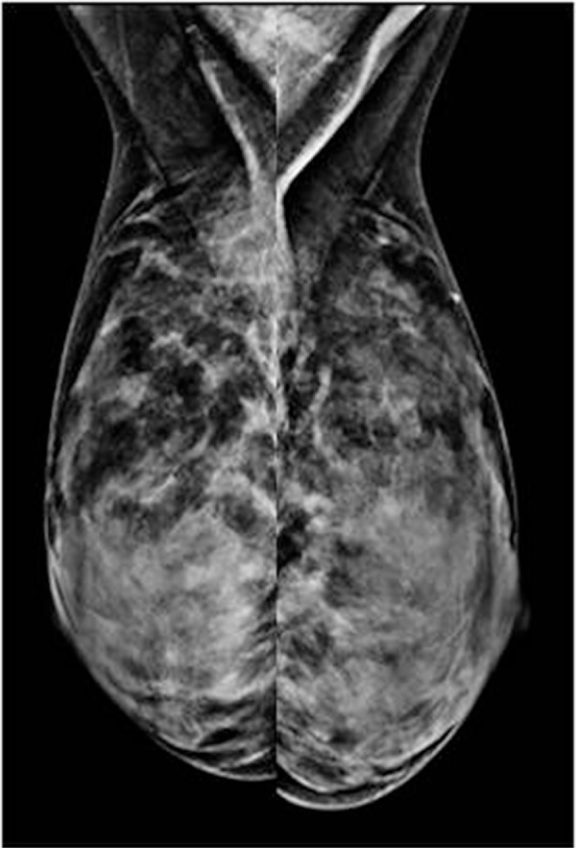 """Imaging mistakes on an MLO view due to compromised positioning (i) nipple not in profile, (ii) edge of pectoralis muscle not well defined, (iii) no formation of """"V,"""" (iv) inframammary fold not seen."""