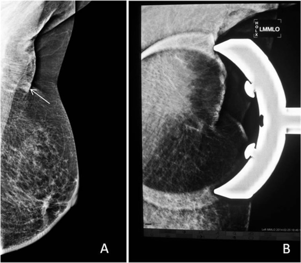 MLO view: (A) a doubtful lesion seen and (B) spot compression with magnification shows normal parenchyma.