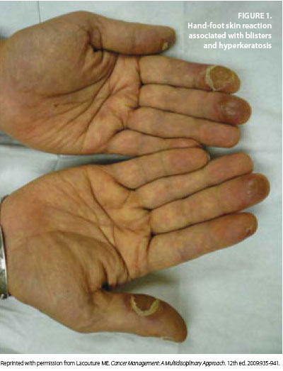 Prevention And Management Of Hand Foot Syndromes Oncology Nurse Advisor