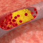 High cholesterol fuels breast cancer growth and spread