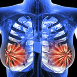 Double mastectomy halves death risk for women with BRCA-related breast cancer