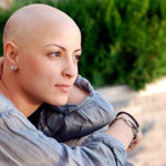 Adjuvant endocrine therapy and alopecia