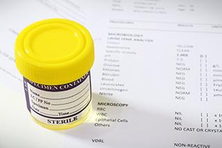 Urinalysis in patients receiving alkylating agents