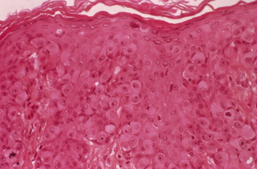 Paget's disease of breast, light micrograph