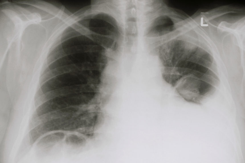 Chest X-ray showing a pleural effusion, an introduction of fluid into the pleural cavity.