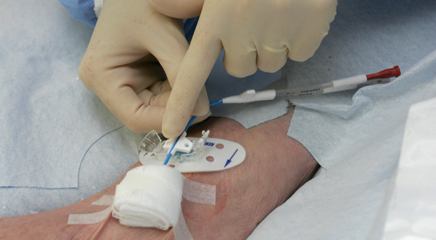Troubleshooting complications of vascular access devices