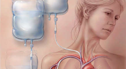Benefits and risks of parenteral nutrition in patients with cancer