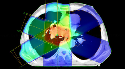 Experts discuss their predictions for radiation medicine