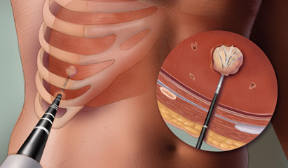 Tumor ablation treatment: A review of modalities